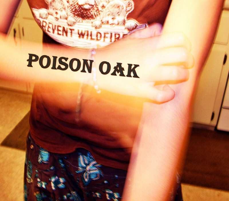 Remedies for poison oak